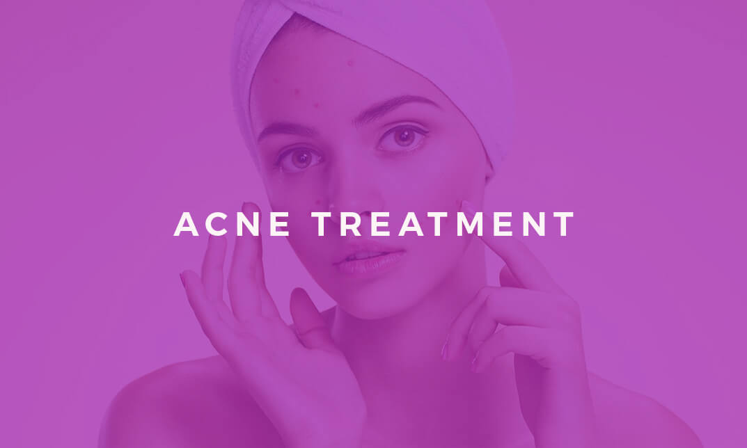 Acne Treatment and Care With Diet, Medication and Healthy Lifestyle